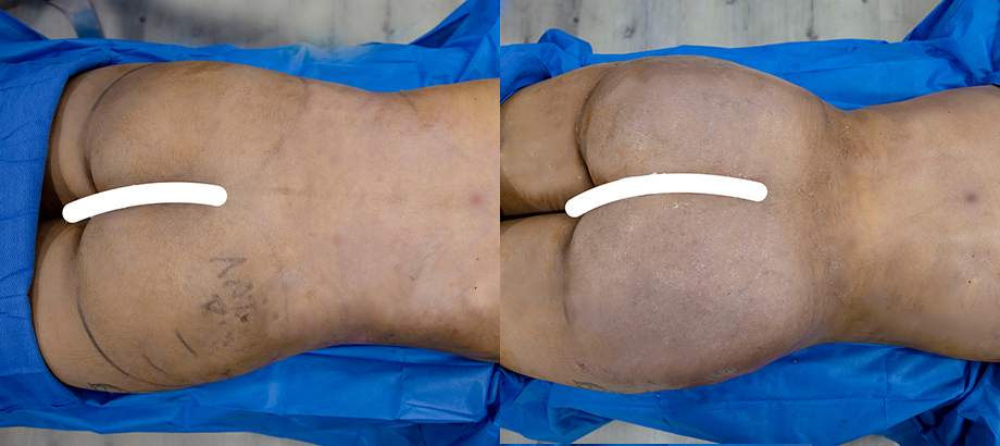 buttock augmentation before and after