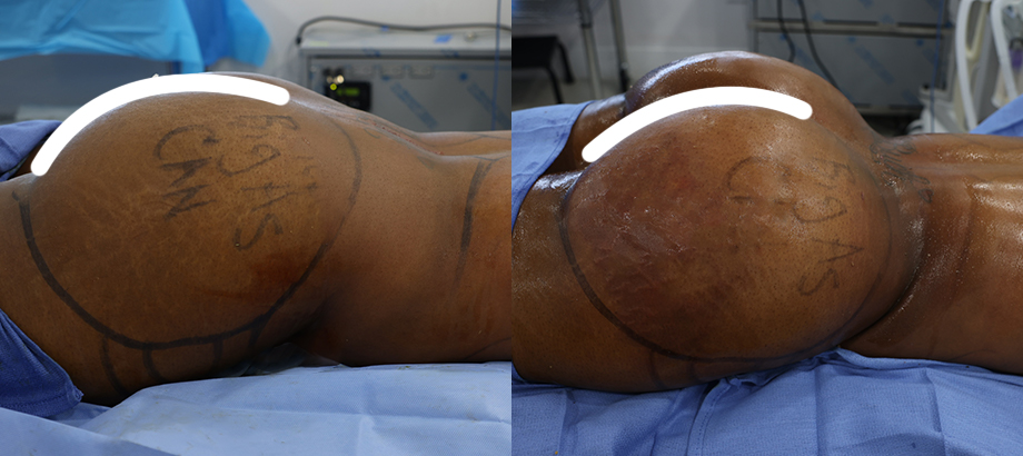 before and after brazilian butt lift results