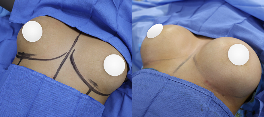 before and after breast implants plastic surgery