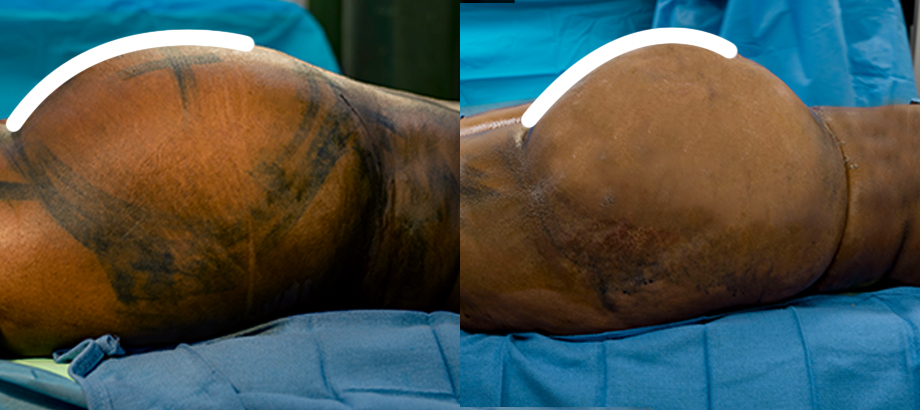 buttocks fat transfer before and after