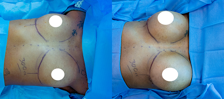 breast augmentation plastic surgery before and after