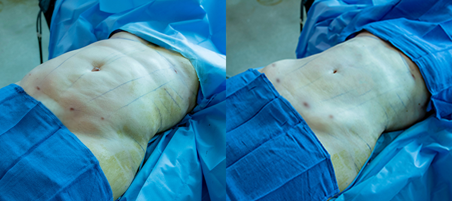 before and after liposuction plastic surgery