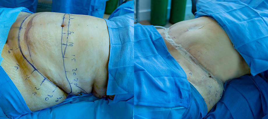 abdominoplasty before and after